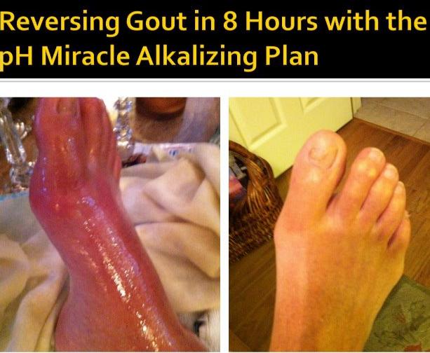 gut tedavisi