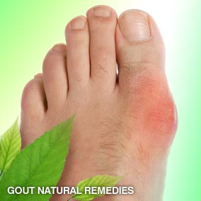 sodium bicarbonate to lower uric acid treatment for high uric acid level in blood herbal remedies for treatment of gout