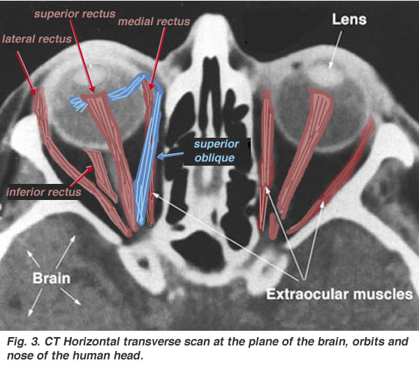 Rectus muscles in Orbit CT | CT Scan Tips & Protocols