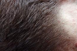 الشعر التالف والمتساقط