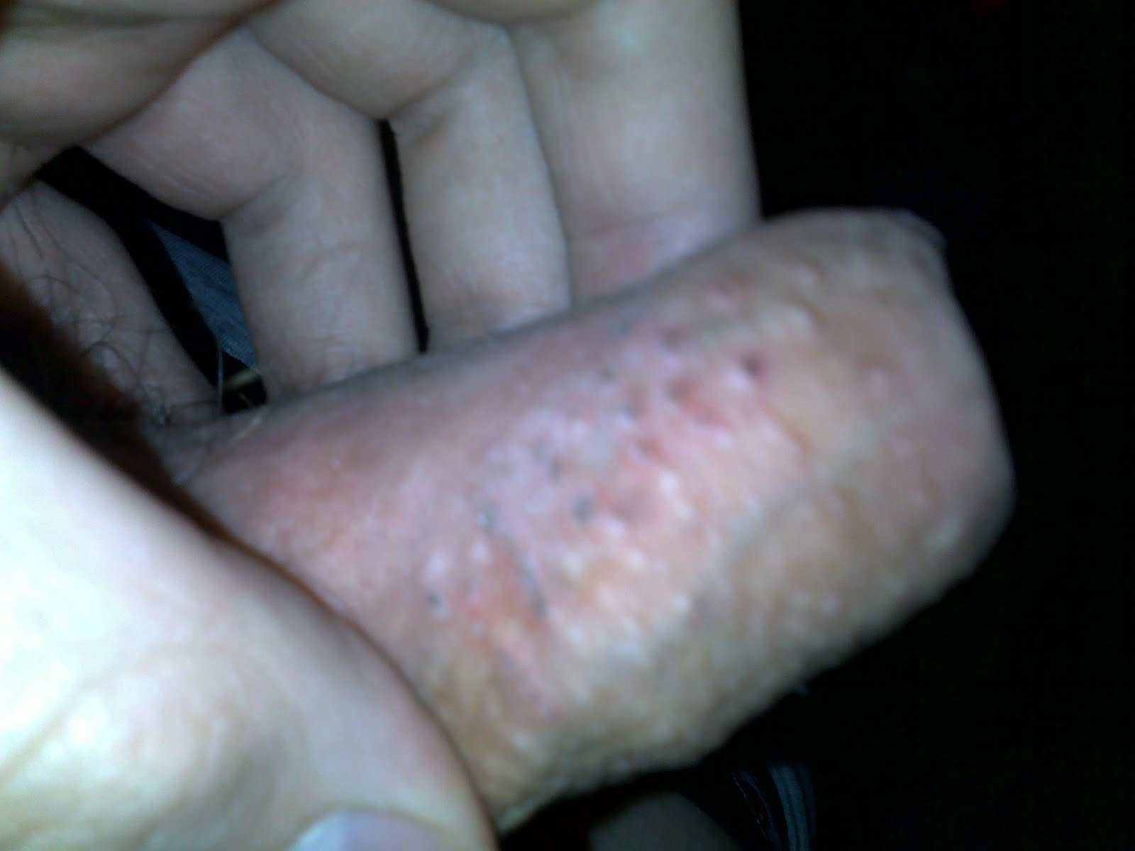 Irritation at penis tip