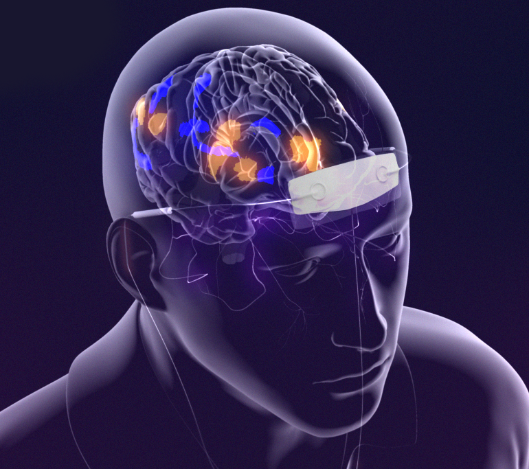 Vagus Nerve Stimulation Nerve Stimulation