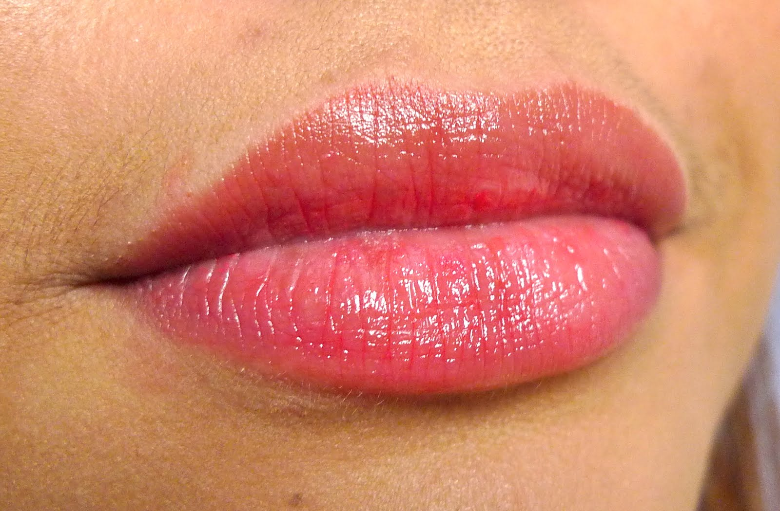 Bumps on Lips - Healthline