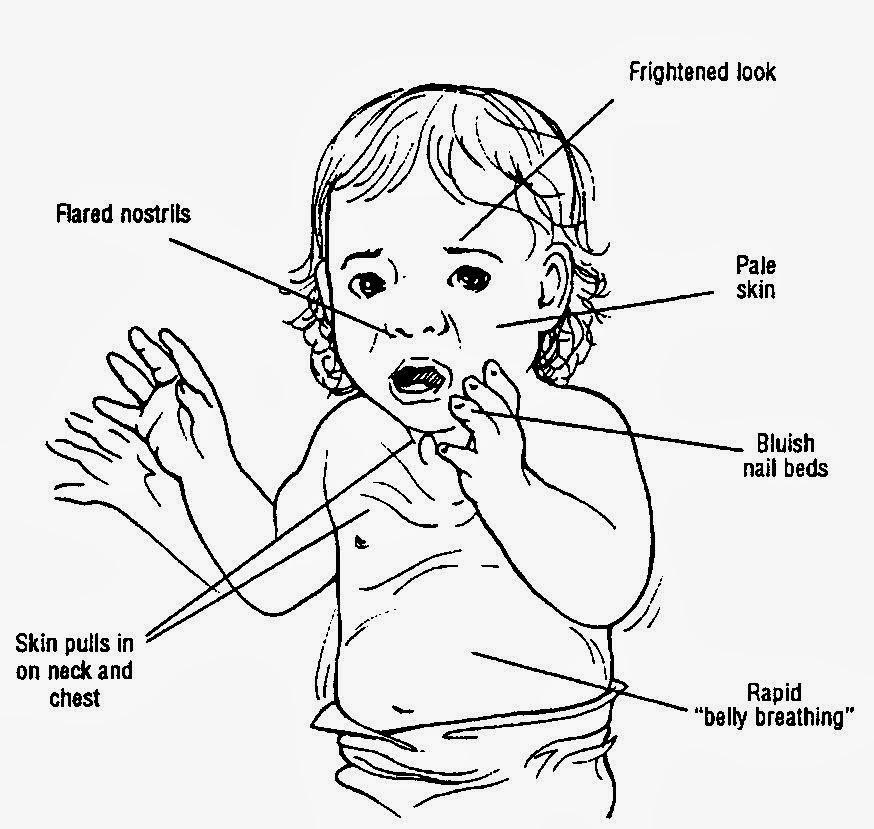 case variant epiglottitis