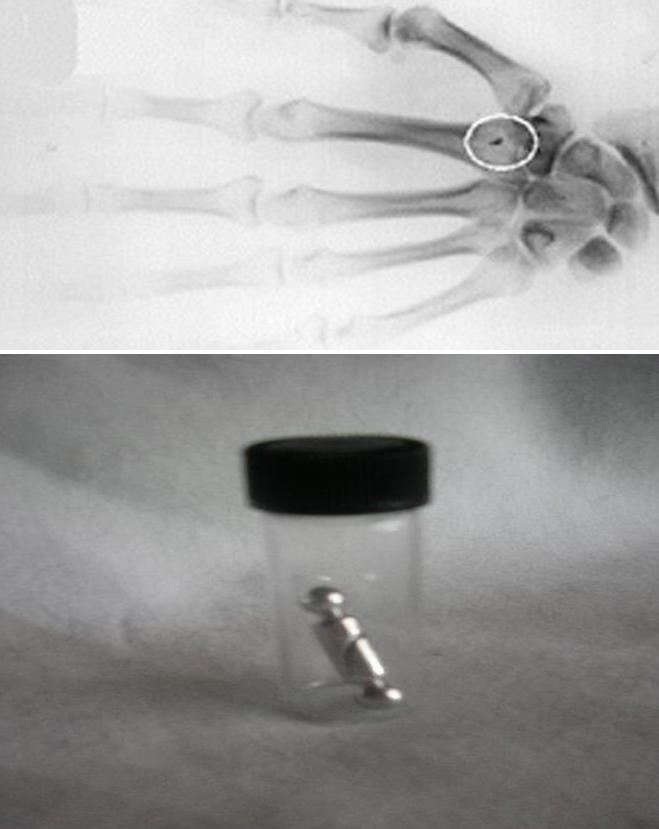 alien implant