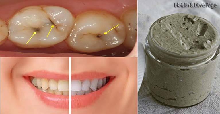 Aprenda A Curar Caries Gengivite E Clarear Os Dentes Com Este Creme