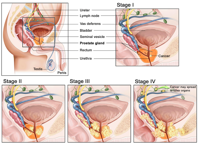 Stage of Prostate Cancer