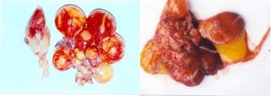 Hình 3: Buồng trứng sung huyết và xuất huyết