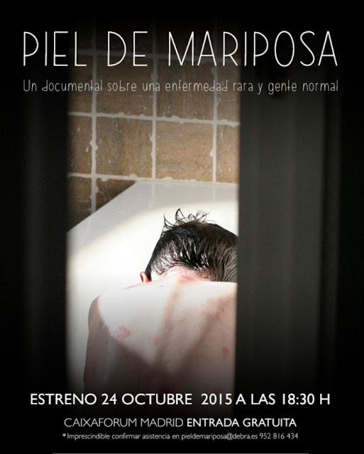 Documental-Piel-de-Mariposa-enfermedad-rara-cynosure-spain