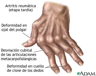 Los estándares del prestar de la ayuda con la osteocondrosis