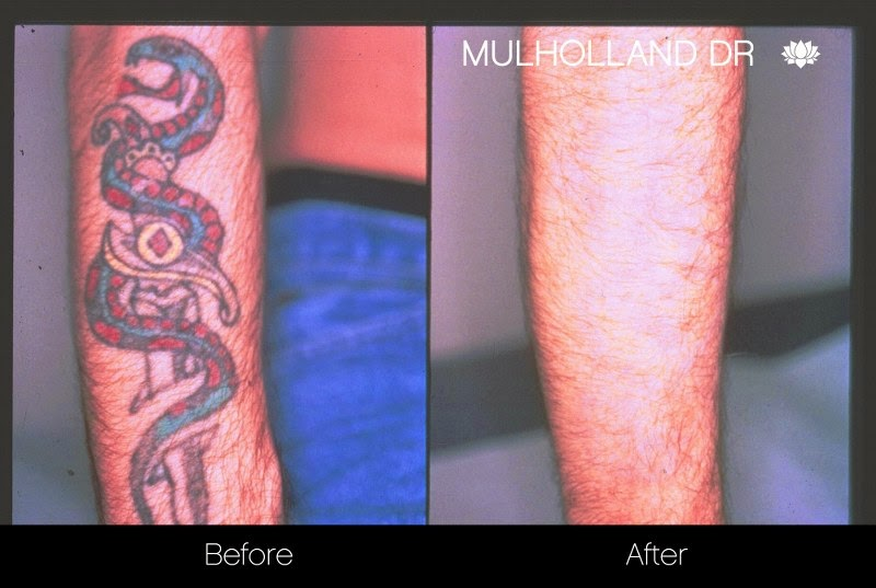 Before and after photo of laser tattoo removal patient
