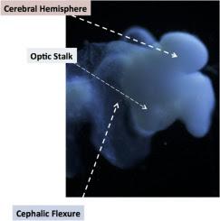 Cientista afirma que desenvolveu cérebro humano em laboratório