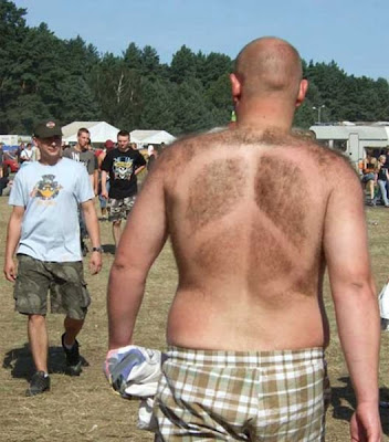 Hair On Back