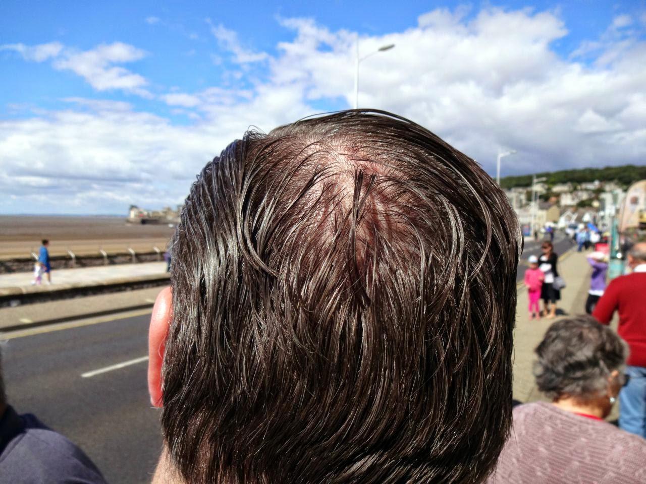 Bald Spot 2