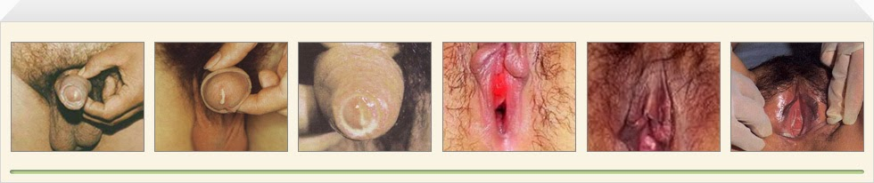Penyakit Sipilis Yang Parah