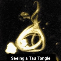 Tau tangle (Photo: National Institute on Aging)