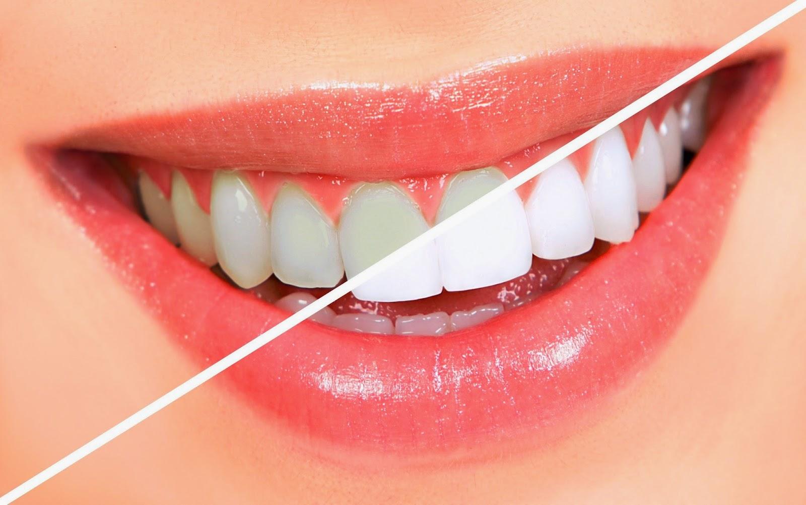 Dişleri Beyazlatma