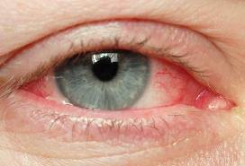 Contagious Pink Eye Among Us