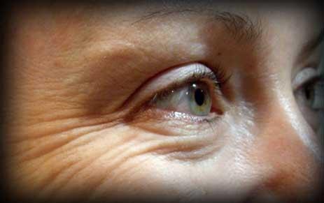 cara mencegah keriput pada wajah