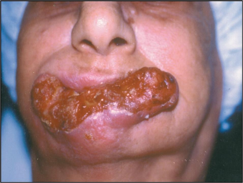 Tongue cancer stage 2 treatment