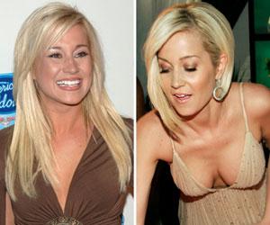 plastic surgery augmentation