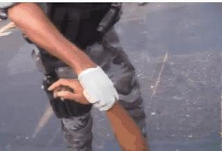 Homem tem o braço decepado em acidente de moto