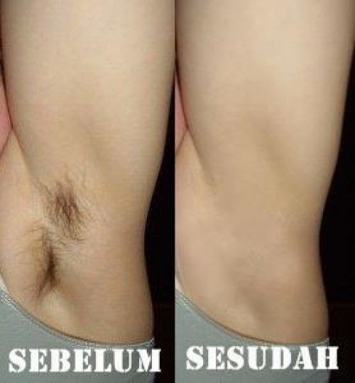 Hasil Penghilang Bulu Rambut Dodora All Gone Hair Removal Cream