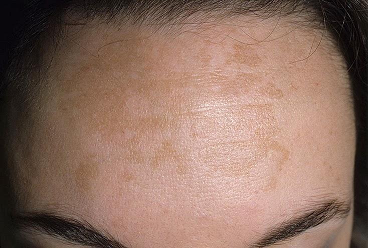 Os Tipos e Causas das Manchas na Pele