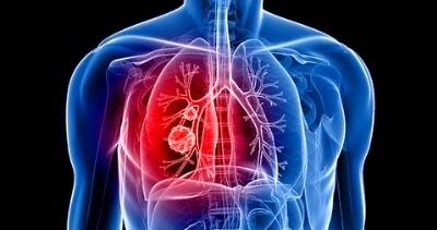 Radon Blog Types Of Lung Cancers Triggered By Radon Gas