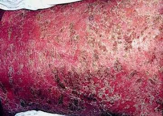 Psoriatic erythroderma