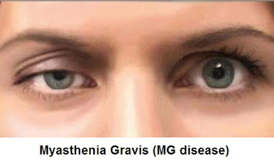 Myasthenia Gravis (MG Disease): Signs-Symptoms, Diagnosis And Treatment