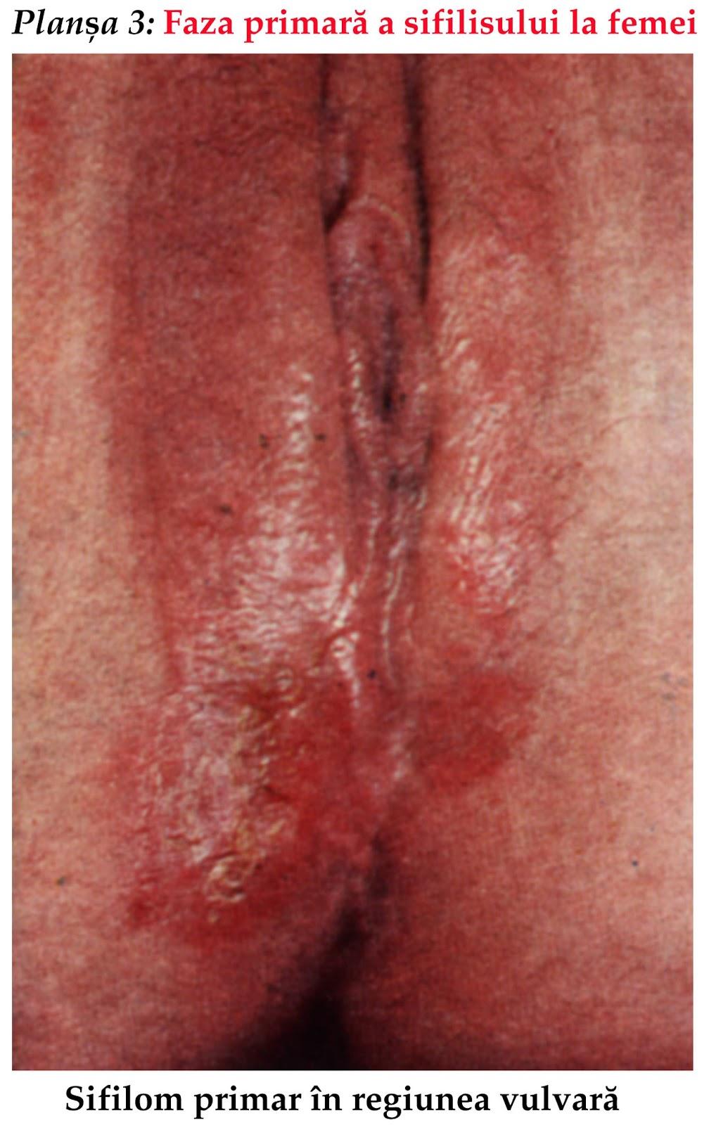 enfermedad de transmision sexual sifilis: