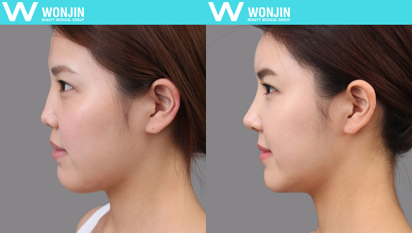 rhinoplasty specialized hospital