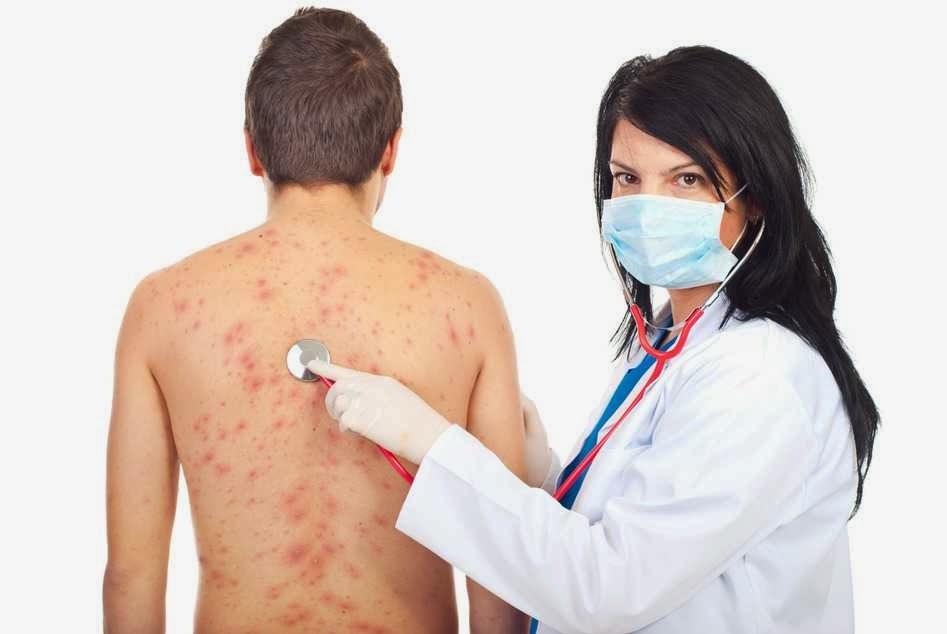 alergi-yang-unik