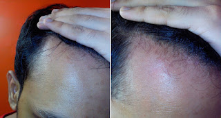 segals solutions hair regrowth