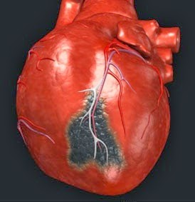 askep sistem cardiovaskuler