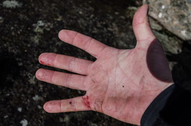 hand with dirt and blood on it