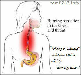 nenju karipu, nenju karippu theera maruthuvam, nenju erichal remedy, nenju erichal marunthu, home remedy for heartburn, chest burning, patti vaithiyam, Acidity, Acid Reflux,  Natural remedy, Ayurvedic Home Remedies, நெஞ்சு எரிச்சல், natural cure