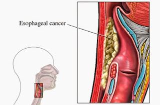 Esophageal Cancer - Forerunners Healthcare Medical Consultants