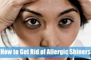 How to Get Rid of Allergic Shiners