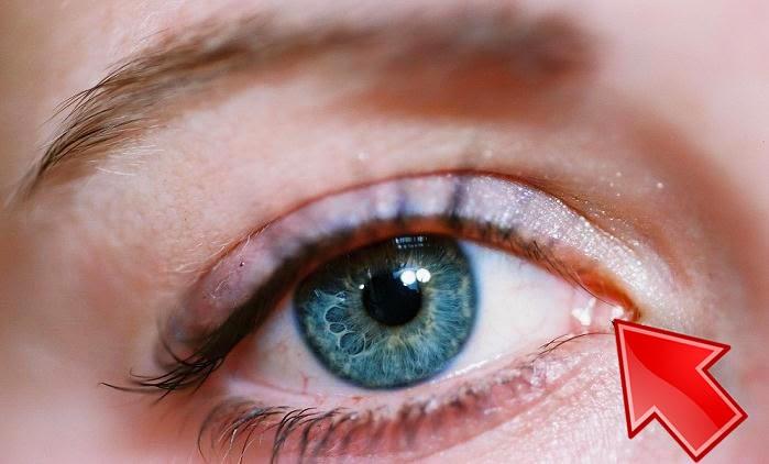 Lacrimal caruncle