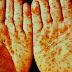 Bercak Merah Di Tubuh Tangan Dan Kaki Karena Sipilis