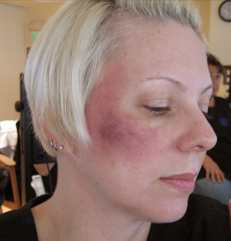 how to clear up bruising on the face