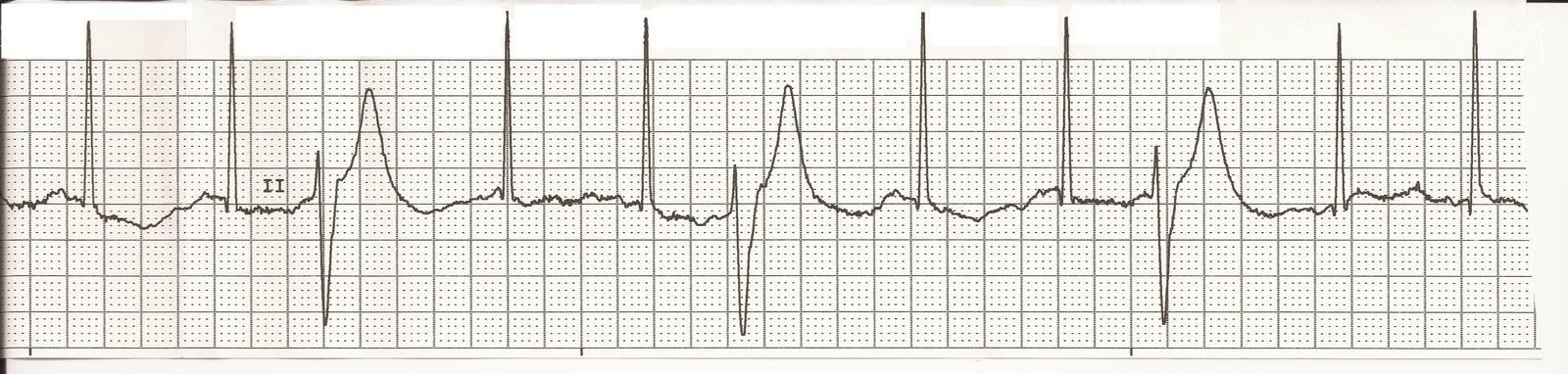 atrial fibrillation research paper