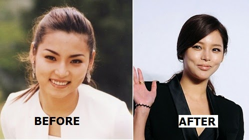 park si yeon before and after plastic surgery