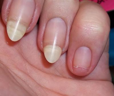 No Holos Frankens And Nail Art Blog Story Of A Broken Nail
