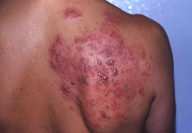 Como Curar el Herpes