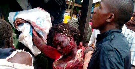 Oh my God! Very graphic photos of victims of Borno Bomb blast