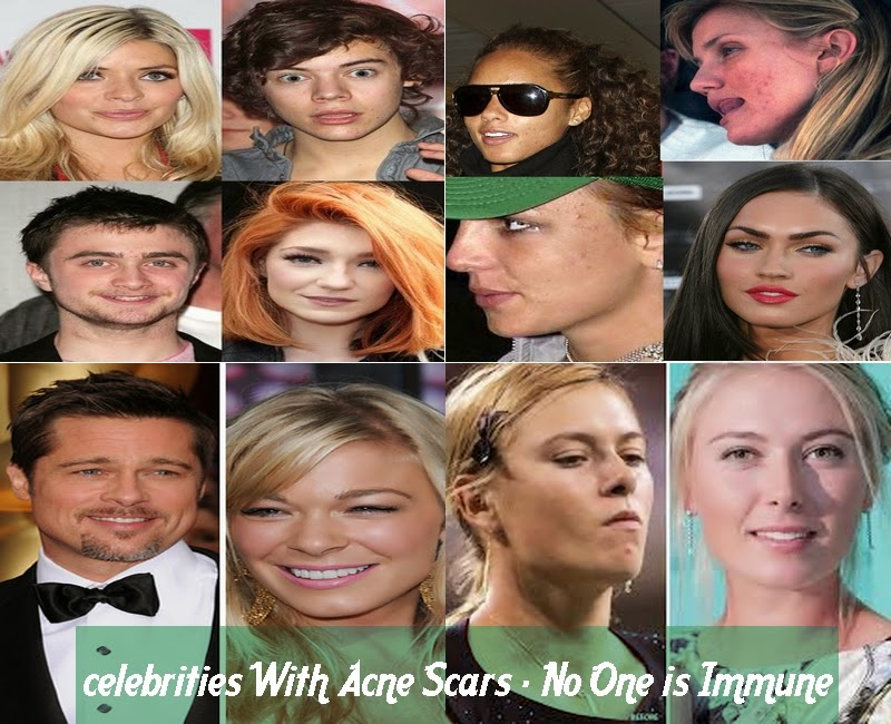 celebrities With Acne Scars - No One is Immune