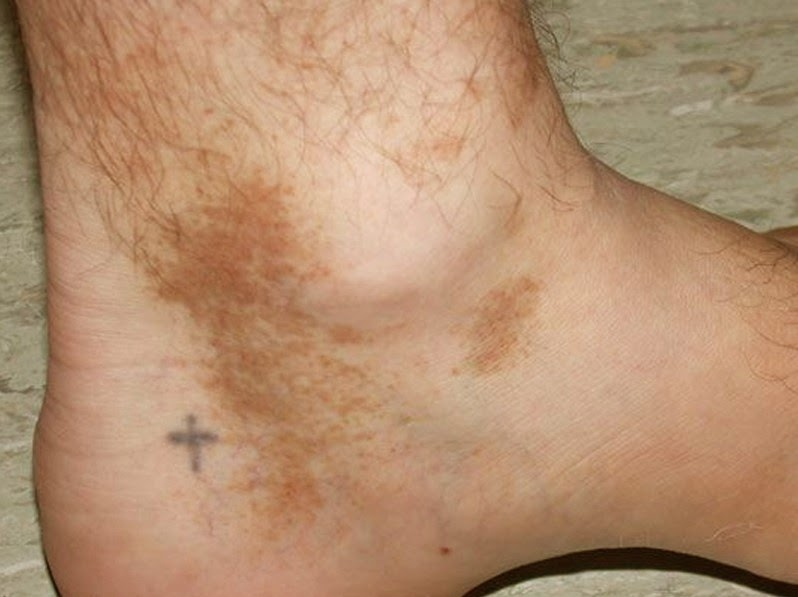 Common Causes Bumps on bottom of feet pictures